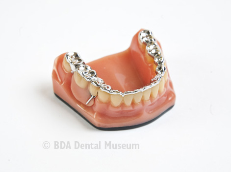 Image of partial denture